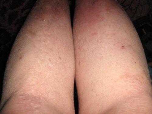 swollen leg (1)