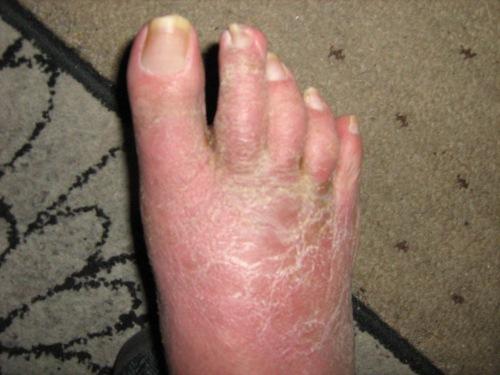 swollen leg (2)